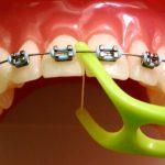 Вреден ли брекет для зубов после снятия