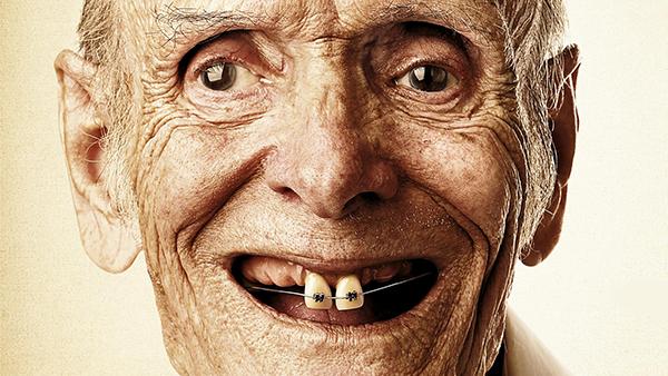 Брекеты в 30 лет и позже: особенности лечения у ортодонта