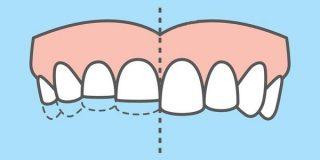 5 причин стираемости зубов