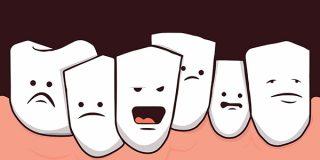 Скученность зубов: причины и лечение